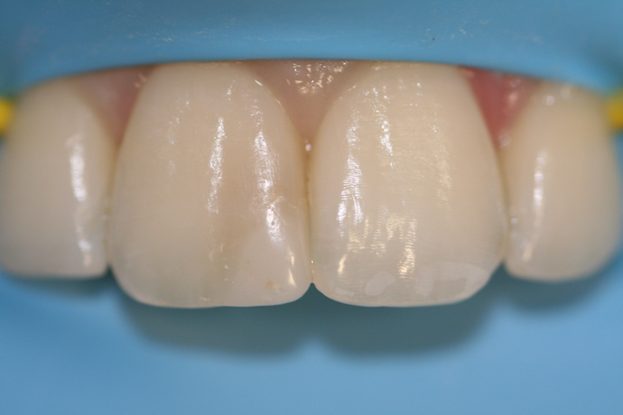 image of bioclear rubber dam isolation pre treatment