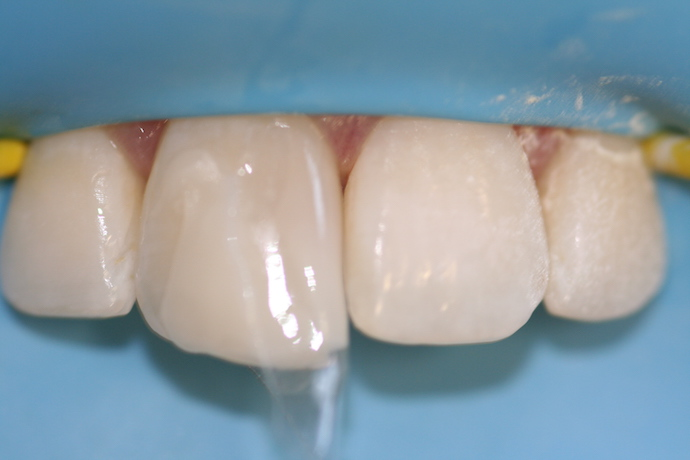 image of bioclear overfilled