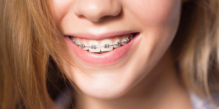 image of conventional orthodontics