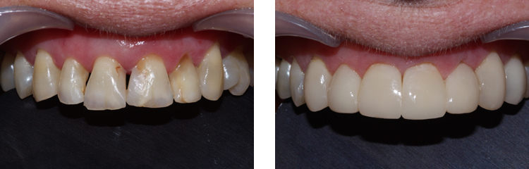 image of black triangle bioclear treated