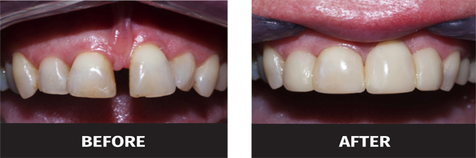 image of filling gap between teeth