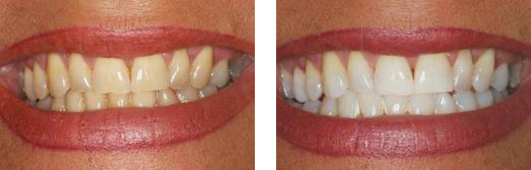 image of tooth whitening
