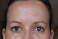 image of anti-wrinkle treatment after