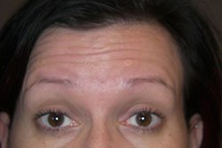 image of anti-wrinkle treatment before